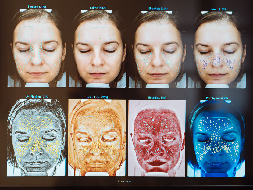 Maßgeschneiderte Hautpflege von Universkin – meine Erfahrung | Werbung, Ergebnis meiner Hautanalyse und individuelle Pflege des Dermatologen, personalisiertes Serum mit aktiven Wirkstoffen, Hautpflege Produkte für mein Hautbild, angepasste Hautpflege dank Universkin, endlich schöne Haut - warum du jetzt Produkte auf deine Bedürfnisse erstellen lassen solltest, www.amigaprincess.com #serum #individuellepflege